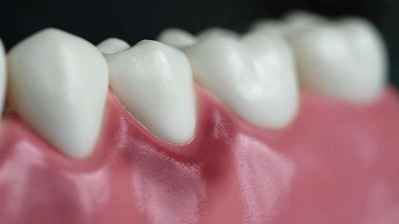 gingivitis and dental model