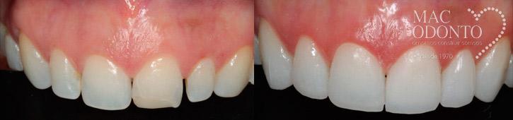 lente-de-contato-dental-caso-clinico